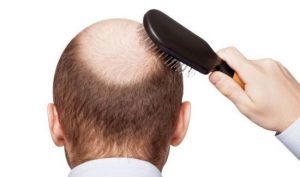 Read more about the article Making the Choice to Have Hair Transplant Surgical procedure