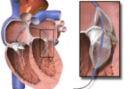 What Is Balloon Valvuloplasty?