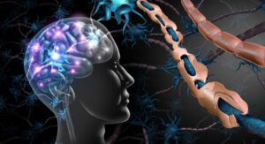 Read more about the article Multiple Sclerosis– An Autoimmune Disorder