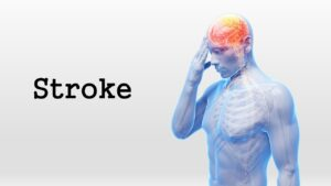 Read more about the article Stroke Prevention First to Minimize the Risk