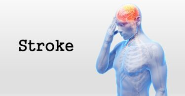 stroke prevention detail image