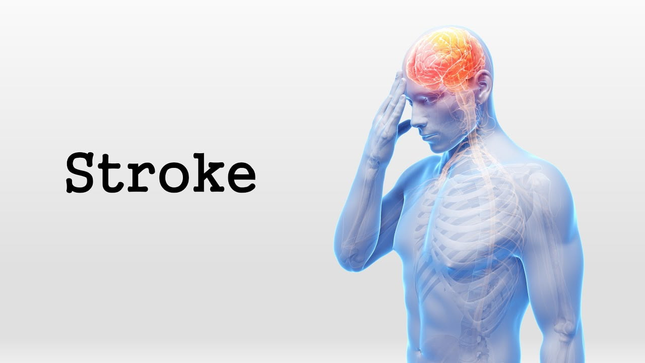 Stroke Prevention First to Minimize the Risk