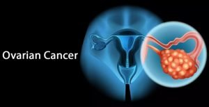 Read more about the article OVARIAN CANCER – Risk factor's, Symptoms & Treatment