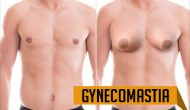 All That One Needs To Know About The Causes Of Gynecomastia