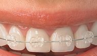 Who Benefits From Orthodontic Treatments?