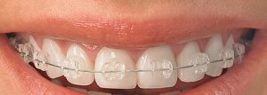 Read more about the article Who Benefits From Orthodontic Treatments?