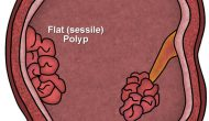 Polyps: Types, Treatments, and Biopsy
