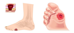 Read more about the article Effect of Diabetes on your Feet and Ankles