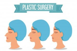 Read more about the article Plastic surgery, Its Types and Procedure
