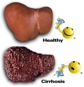CIRRHOSIS – ONGOING AILMENT OF THE LIVER
